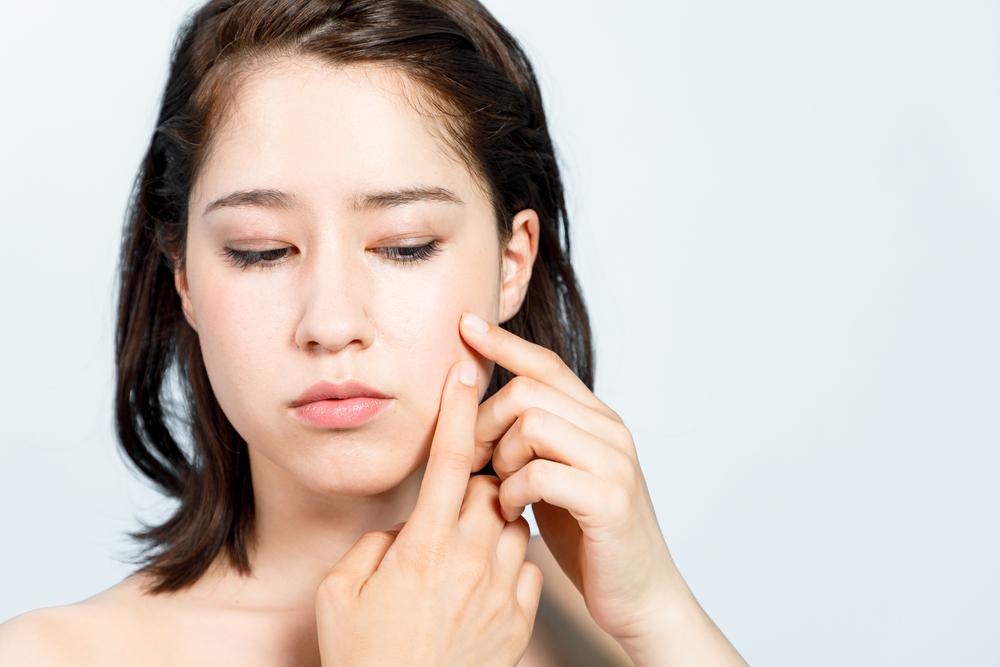 dårligt hår beskidte vaner forårsager acne